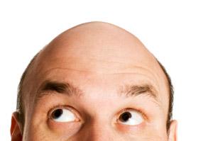 Die Volksbehandlung beim Haarausfall bei den Männern