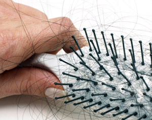 tipps gegen haarausfall haarverlust alopezie haartransplantation. Black Bedroom Furniture Sets. Home Design Ideas